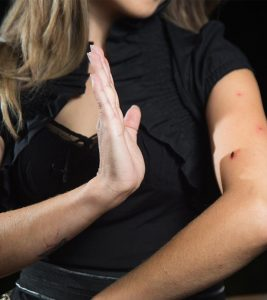 20 Effective Home Remedies To Stop Mosquito Bites From Itching