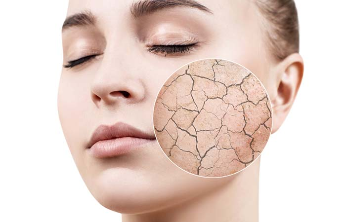 Glycerin Improves Skin Permeability - Benefits Of Glycerin For Oily Skin