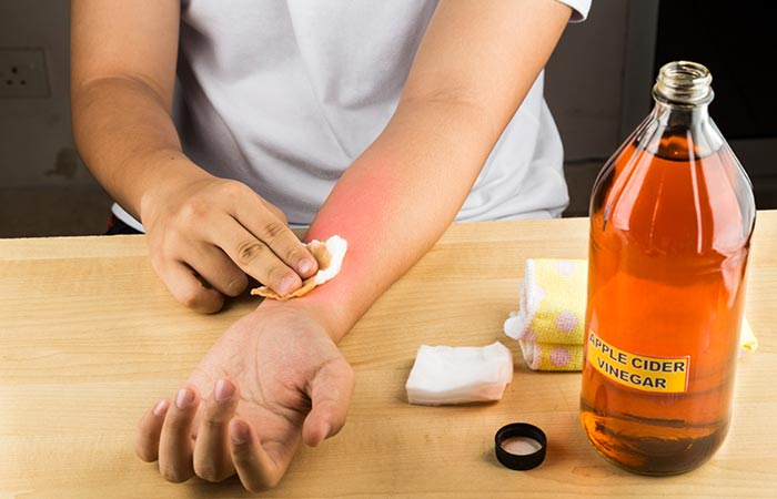 15 Best Home Remedies To Get Rid Of Ringworm's + Prevent Tips