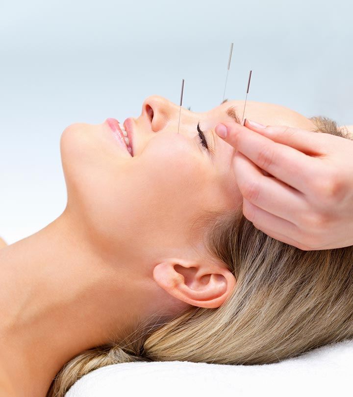 The Effect Of Acupuncture On Your Health And Insomnia
