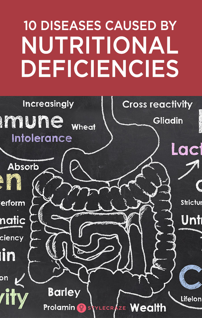 Top 10 Nutritional Deficiencies + Types Of Diseases They Cause