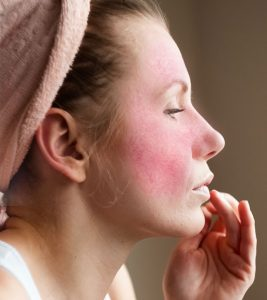 10 Natural Remedies To Manage Rosacea + Types, Symptoms, And Causes