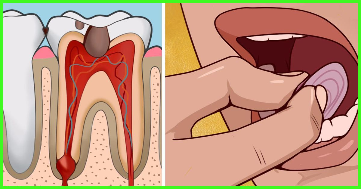 18 Effective Home Remedies For Tooth Ache