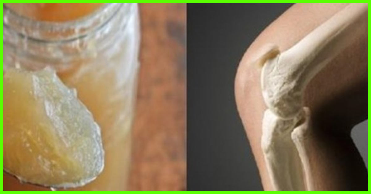 14 Natural Remedies For Knee Joint Pain Causes And