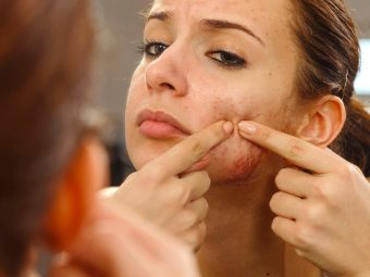 Comedonal Acne - What Is It And 5 Ways To Control It