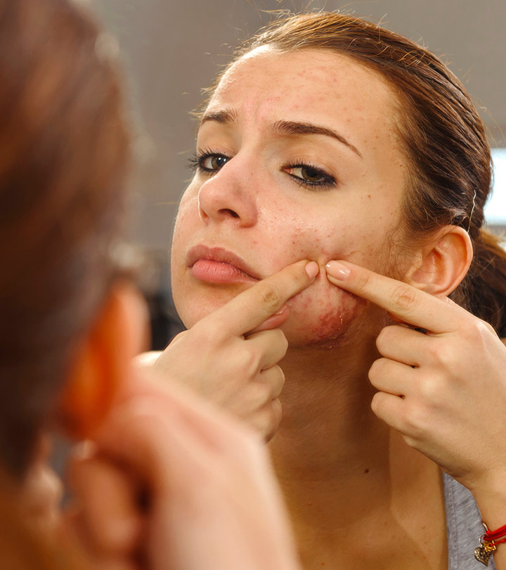 What Is Comedonal Acne And Ways To Treat It