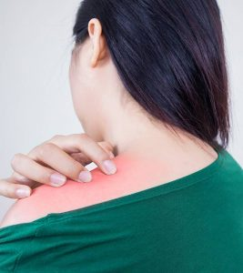 27 Effective Home Remedies For Prickly Heat