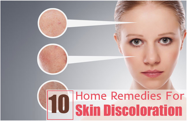 Home Remedies for Skin Pigmentation -   Are you looking for safe and easy ideas to lighten skin naturally at home? Here are some home remedies for skin pigmentation that can help you to get glowing complexion