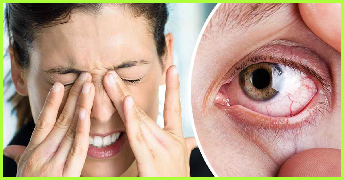 15 Simple Home Remedies To Relieve Dry Eyes