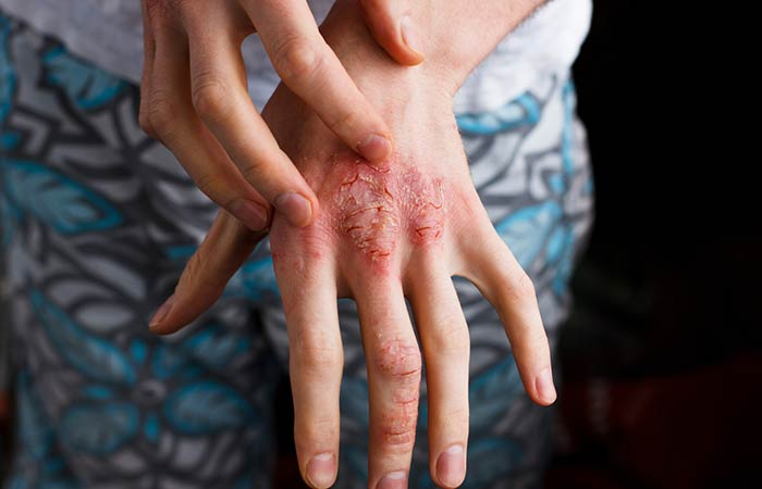 7. Treats Eczema And Psoriasis