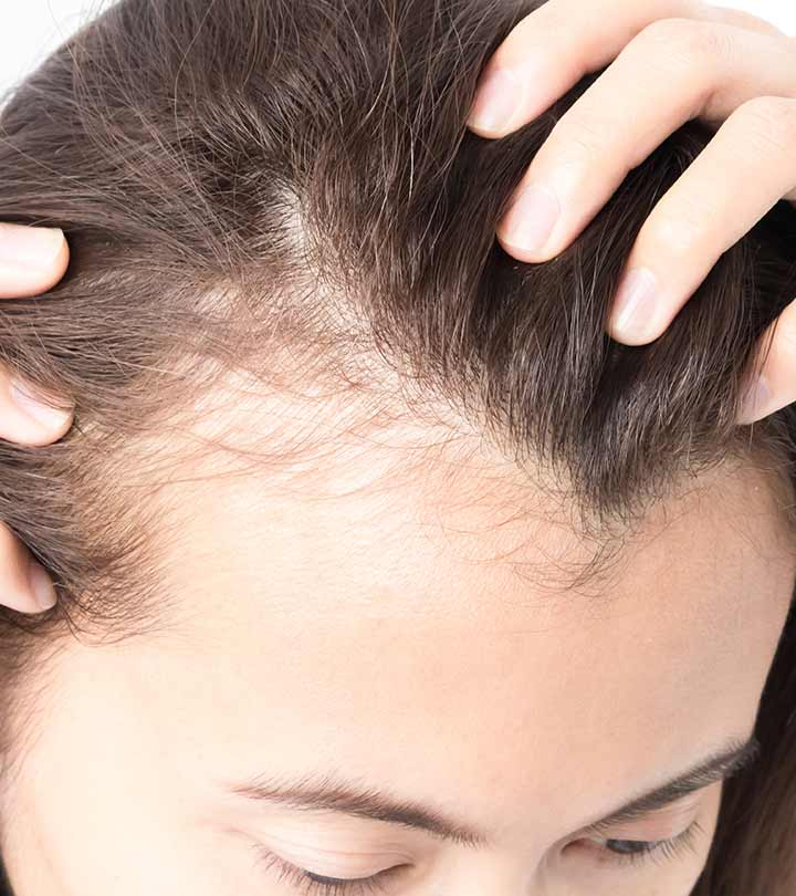 Top 10 Home Remedies To Cure Baldness Effectively