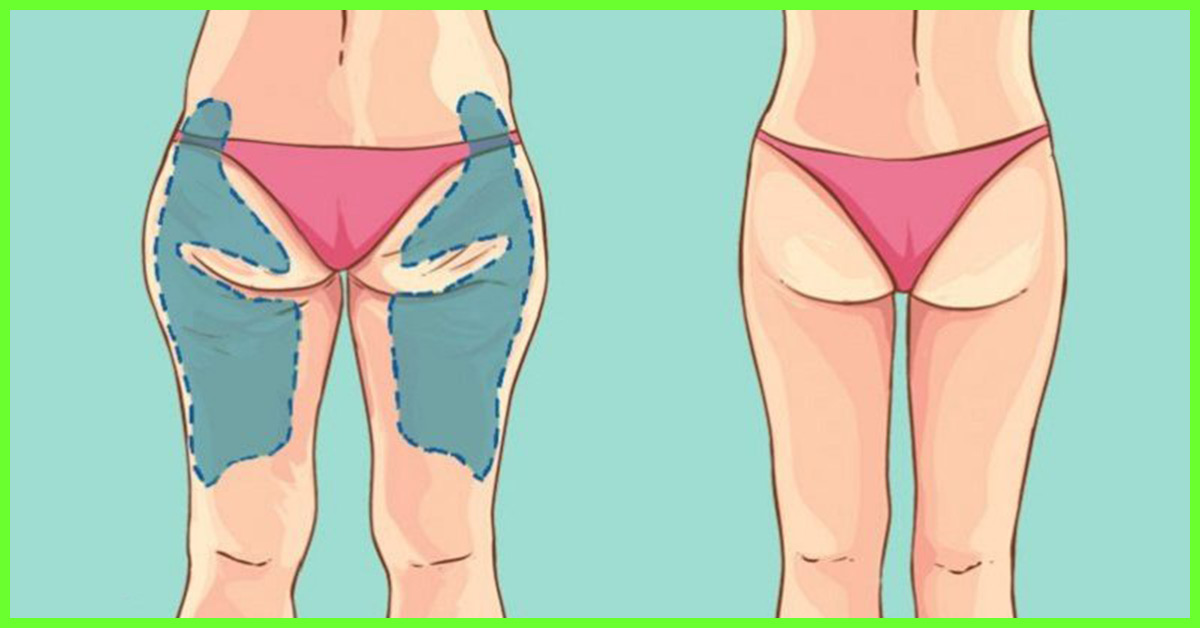 15 Exercises To Tone Your Thighs Get Rid Of Cellulite