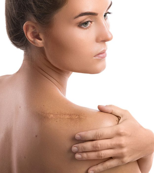 How To Remove Old Scars 9 Home Remedies
