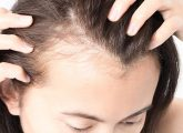 Top-10-Home-Remedies-To-Cure-Baldness-Effectively