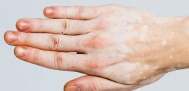10-Amazingly-Effective-Home-Remedies-To-Treat-Leucoderma