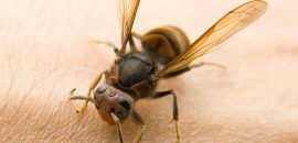 10-Effective-Home-Remedies-For-Bug-Bites