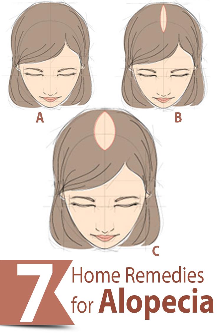 Hair loss treatment for women home remedies