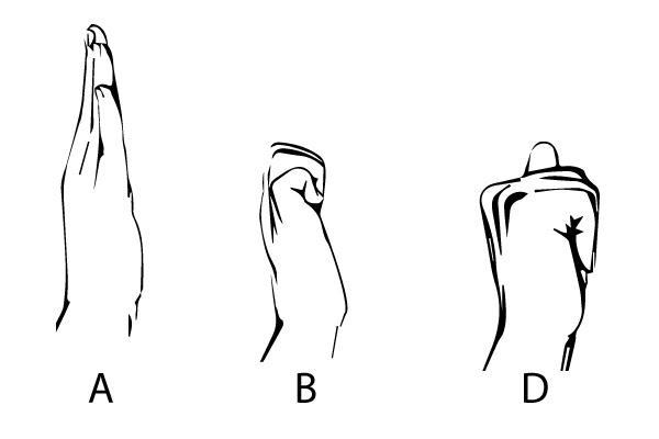 hand tendon glide