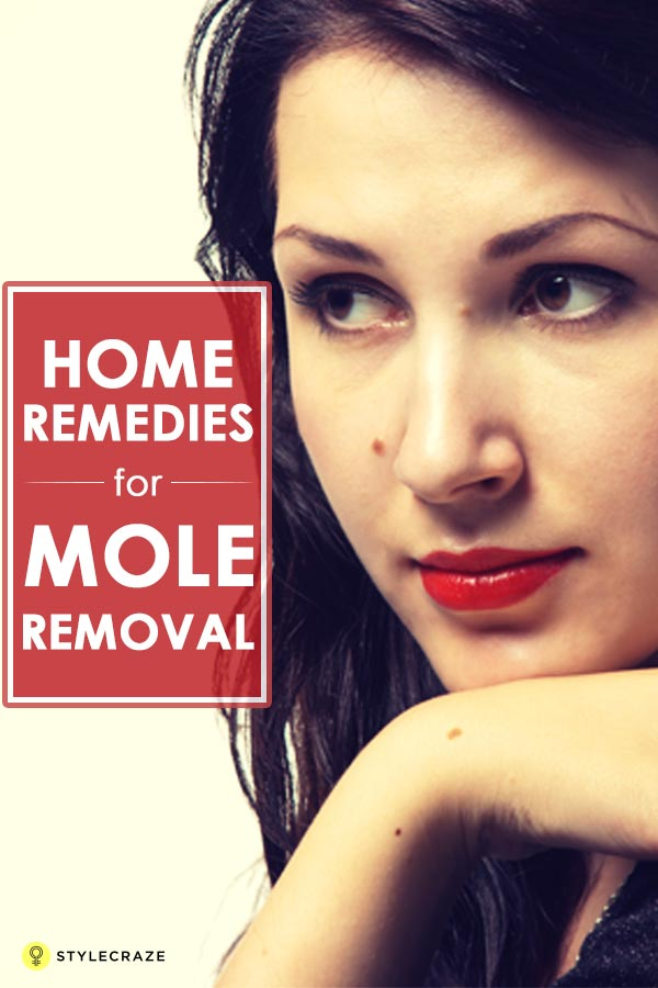24 Effective Home Remedies For Mole Removal
