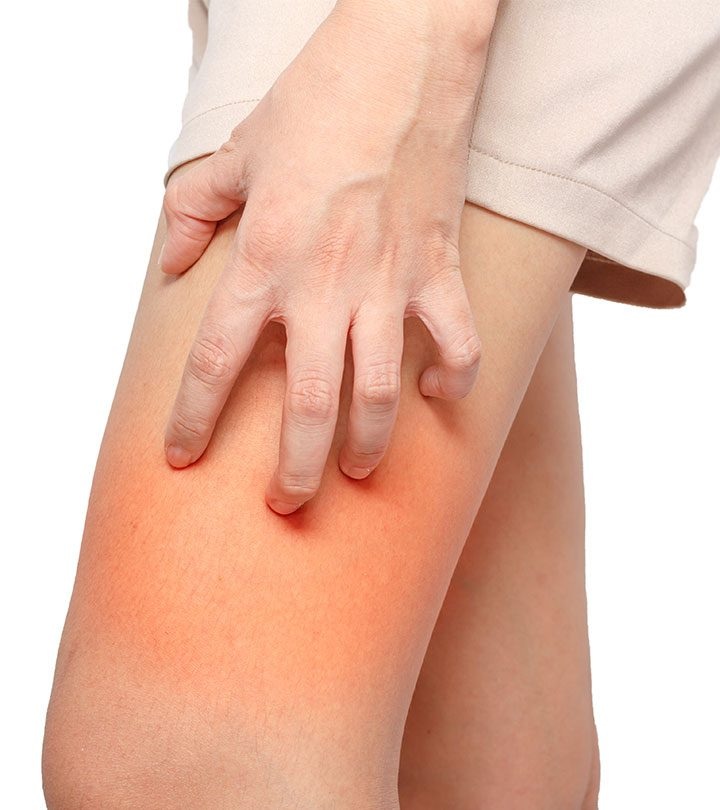 How To Get Rid Of Chafing Rash Overnight + Prevention Tips