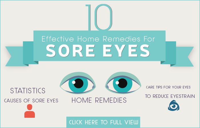 Sore Eyes Home Remedies
