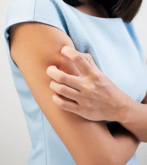 10 Symptoms & Treatments For Dry Skin Allergies