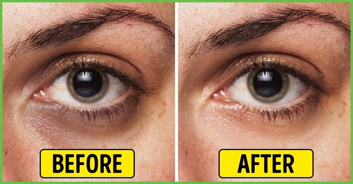 DIY - Highly Effective Natural Eye Emulsion To Get Rid Of ...
