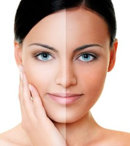 How To Remove Tan From The Face And Skin – 12 Remedies, Treatment Options + Tips