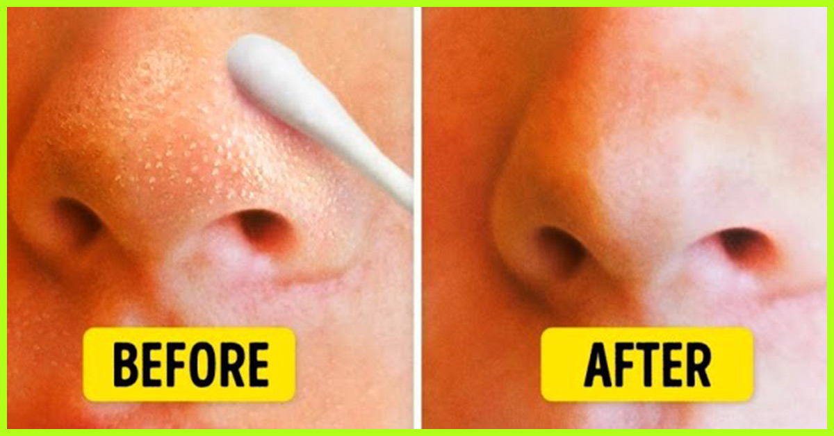 Natural Ways To Remove Blackheads Permanently