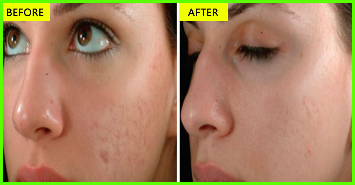 10 easy ways to use olive oil to get rid of acne scars ccuart Choice Image