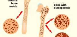 25-Effective-Home-Remedies-To-Cure-Osteoporosis