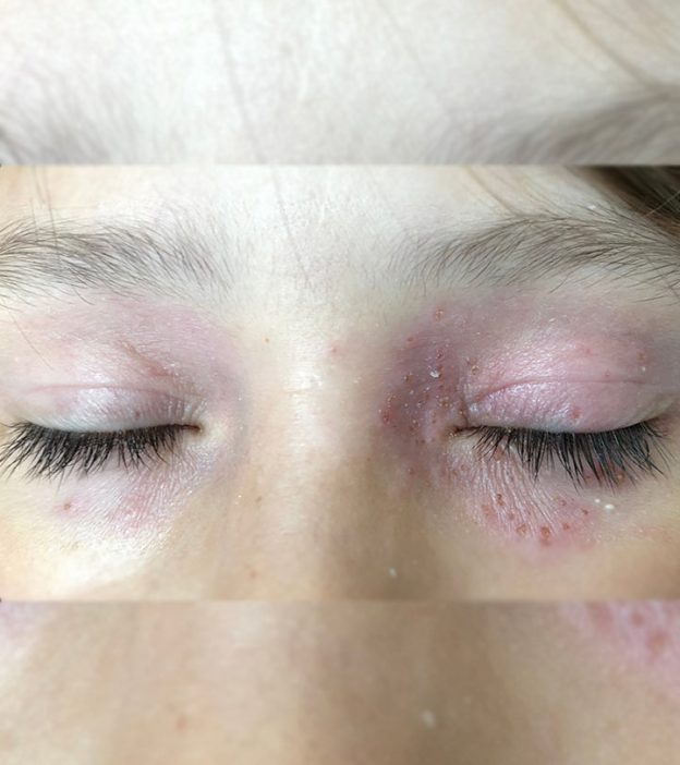 12 Home Remedies To Get Rid Of A Rash Around The Eyes