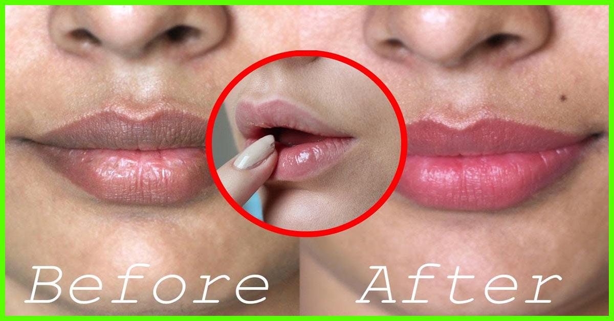 Dark Spot On Lip After Kissing