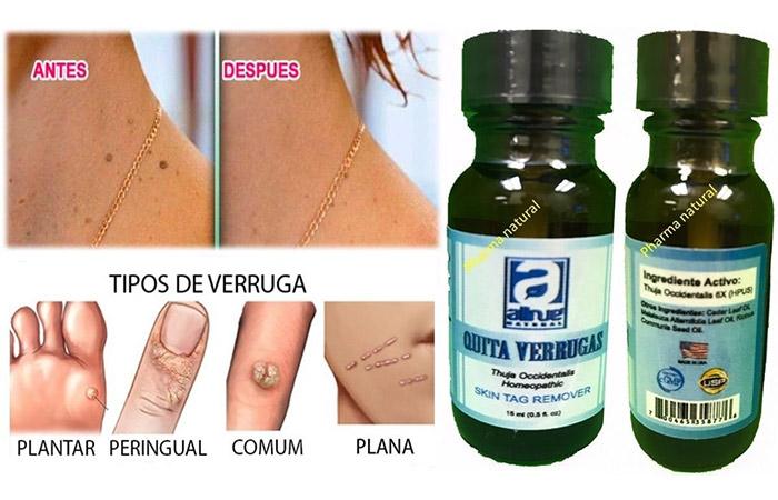 Mole Removal Creams - Quita Verrugas Skin Tag Remover