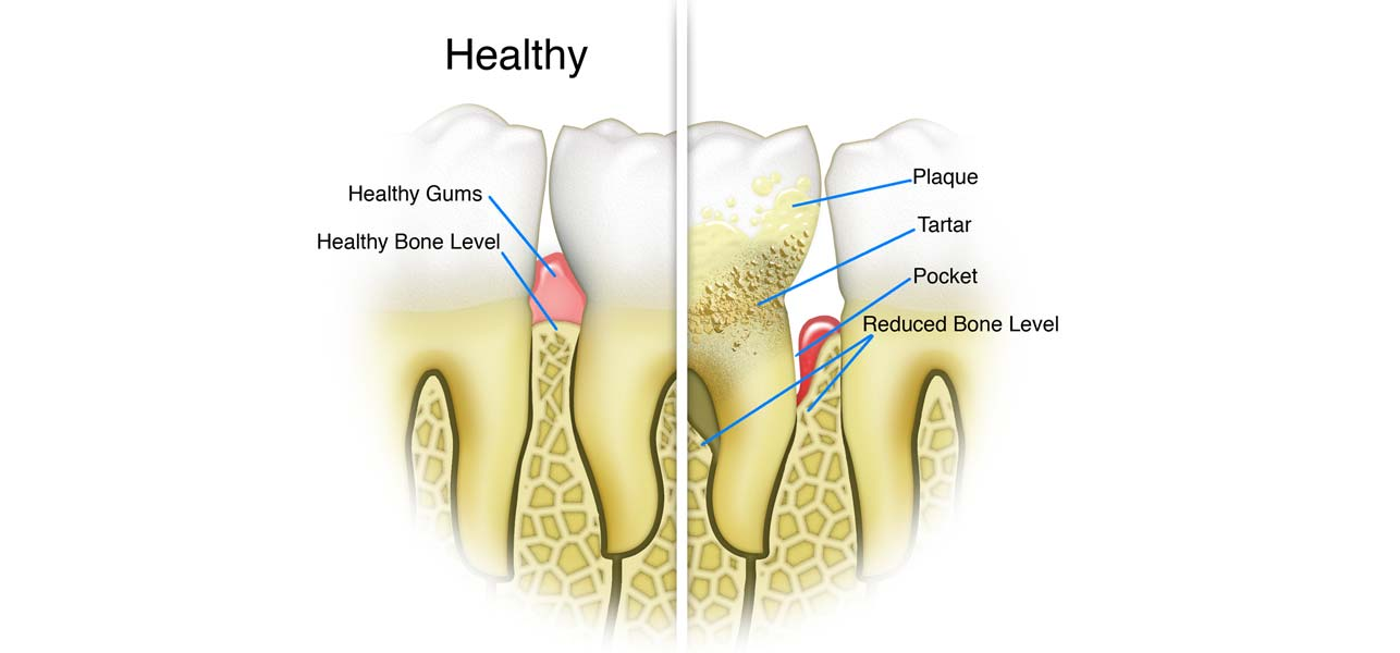 Remove Tarter & Plaque From Teeth
