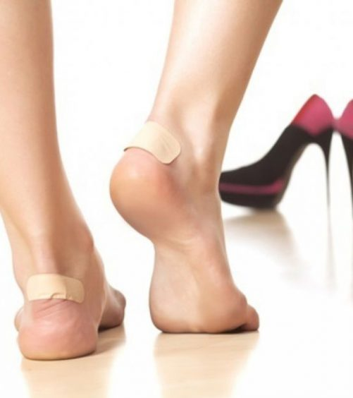 Top 10 Home Remedies For Shoe Bites