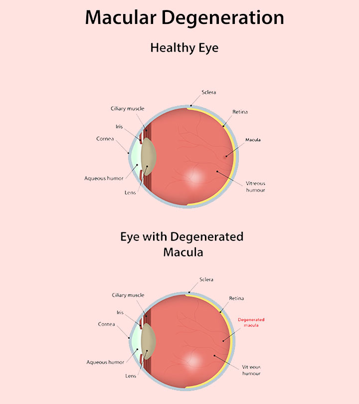 20-Effective-Home-Remedies-To-Cure-Macular-Degeneration