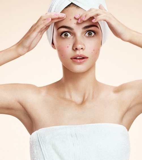828_11 Effective Ways To Use Baking Soda For Treating Acne_iStock-469617628