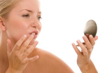 Home Remedies To Treat Fordyce Spots@design image