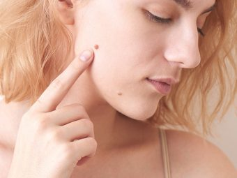 Top-10-Mole-Removal-Products-Available-In-India