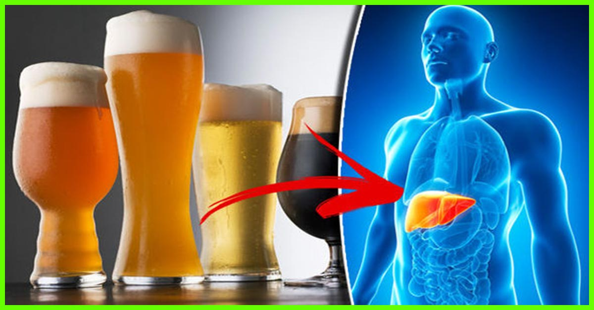 10 Top Side Effects Of Beer On Your Body And Health