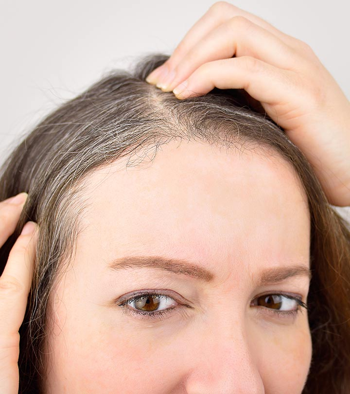 What Is Poliosis Causes And Treatment