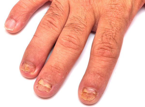 Nail Fungal Infection Pinit