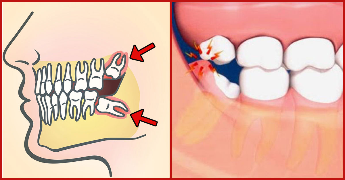 Image result for wisdom tooth