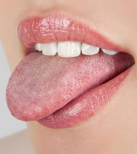 10 Simple Home Remedies For Oral Thrush