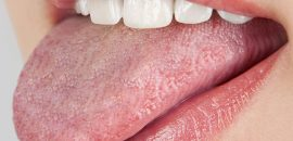 10-Simple-Home-Remedies-For-Oral-Thrush