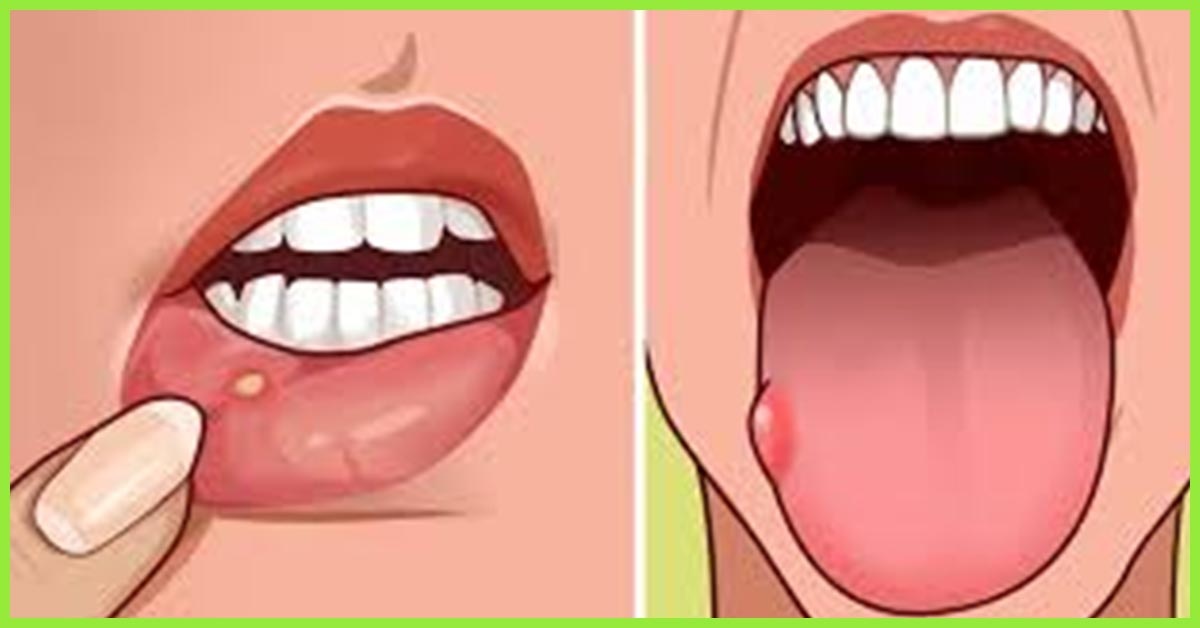 16 Home Remedies To Get Rid Of Blisters On The Tongue