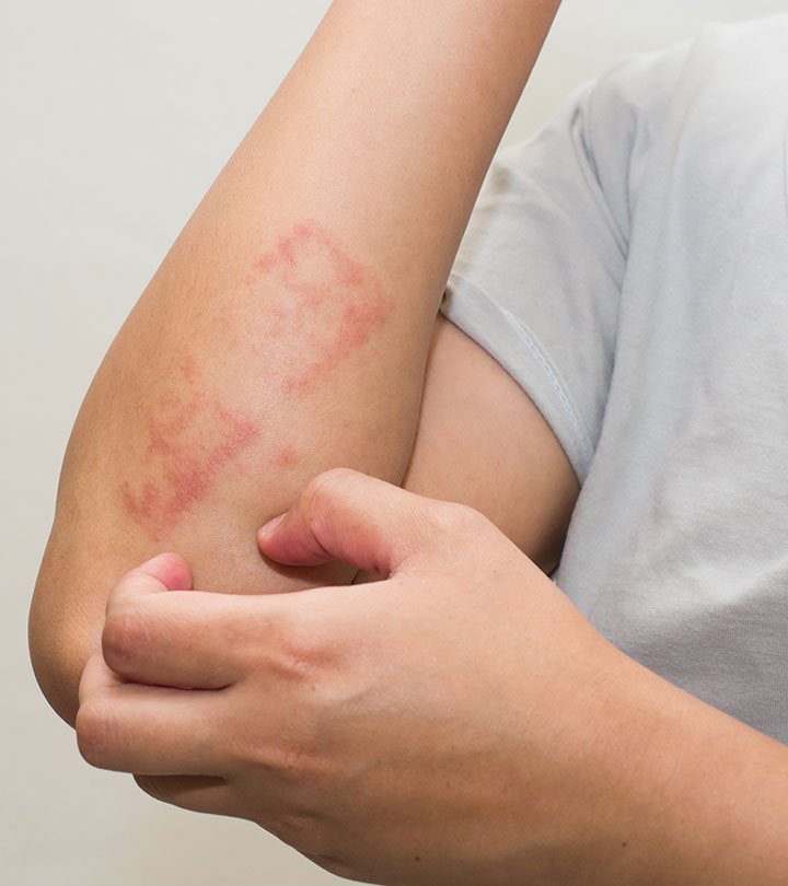 6 Ways To Use Apple Cider Vinegar For Psoriasis Treatment