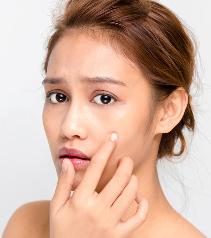 Can Mederma Be Used To Treat Acne Scars