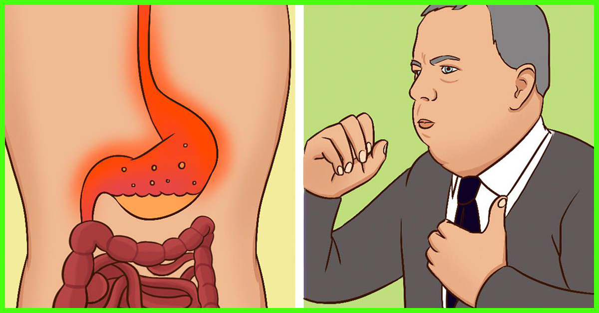 14 Home Remedies To Cure Burning Sensation In The Stomach